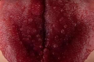 língua com estomatite de perto, câncer oral foto