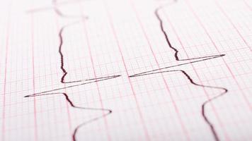 frequência cardíaca em papel cardiograma closeup. foto