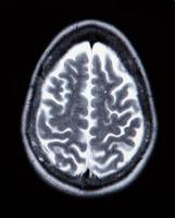 uma verdadeira ressonância magnética da vasculatura cerebral foto
