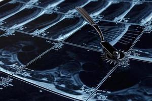 ressonância magnética e martelo de reflexo foto