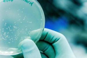 cultura de placas de Petri e bactérias