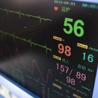 tela de monitor cardíaco foto