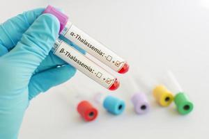 amostra de sangue beta e alfa talassemia foto