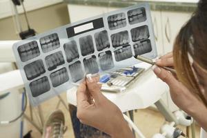 dentista examinando raios-x foto