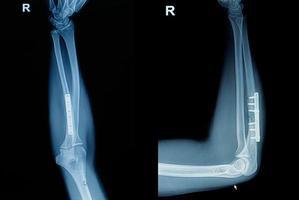 fratura de pulso de raio-x do filme foto