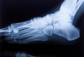 tornozelo pés e joelho dor nas articulações raio-x humano filme de ressonância magnética foto