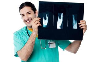 médico alegre segurando um raio-x do polegar foto