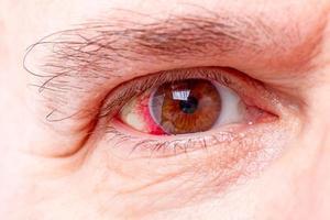 olho humano vermelho foto