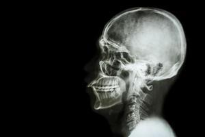 crânio asiático de raio-x e área em branco no lado esquerdo foto