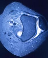 ressonância magnética ressonância magnética foto
