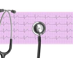 análise cardíaca, gráfico de eletrocardiograma (ecg) e estetoscópio foto