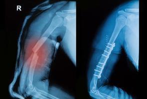 imagem de raio-x do osso do braço de Borken mostra operação pré-pós foto