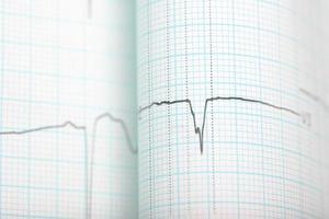 formação médica de gráfico de ecg foto
