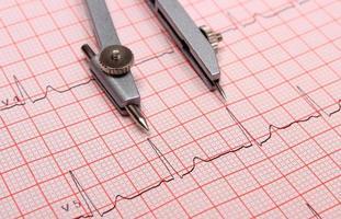 relatório gráfico de eletrocardiograma e pinças foto