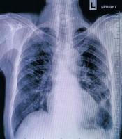 exame de pneumonia, detalhes modernos de radiografia de raios-X foto