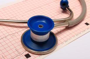 estetoscópio com relatório gráfico de eletrocardiograma foto