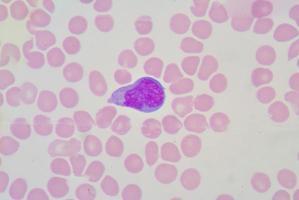 linfócito atípico foto