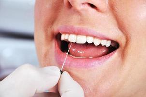 dentista examina os dentes foto