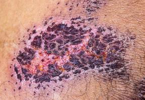 pele de crosta de incrustação médica do paciente