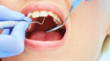 close-up de uma paciente bonita com a boca aberta foto