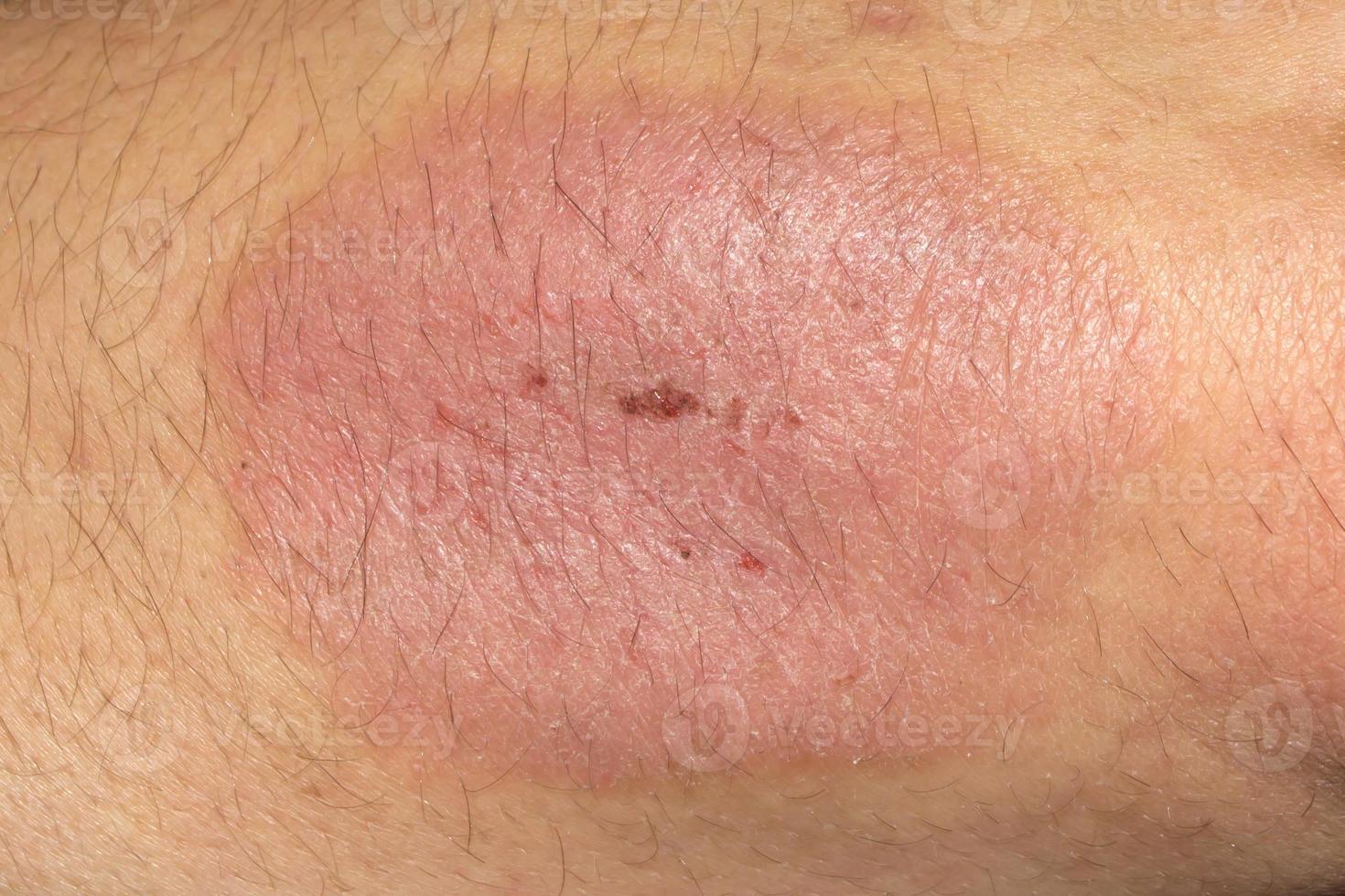 Psoriasis Ellenbogen foto