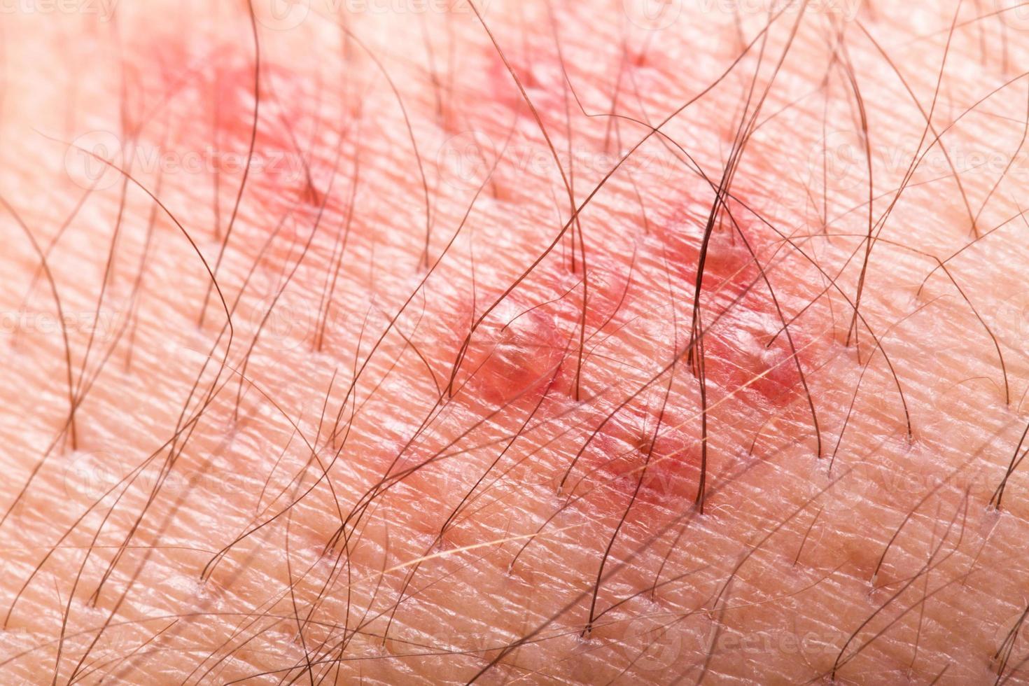 extreme Nahaufnahme eines haarigen Armes mit rotem Gürtelrose-Ausschlag foto