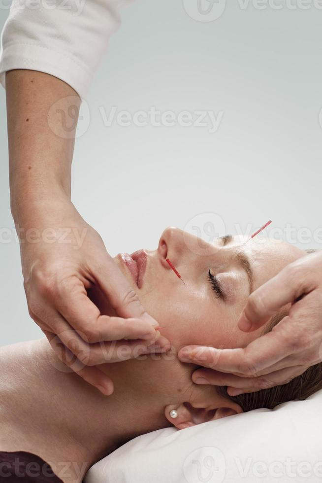 Akupunktur foto
