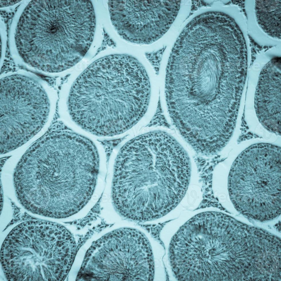 mikroskopischer Schnitt des Hodengewebes foto