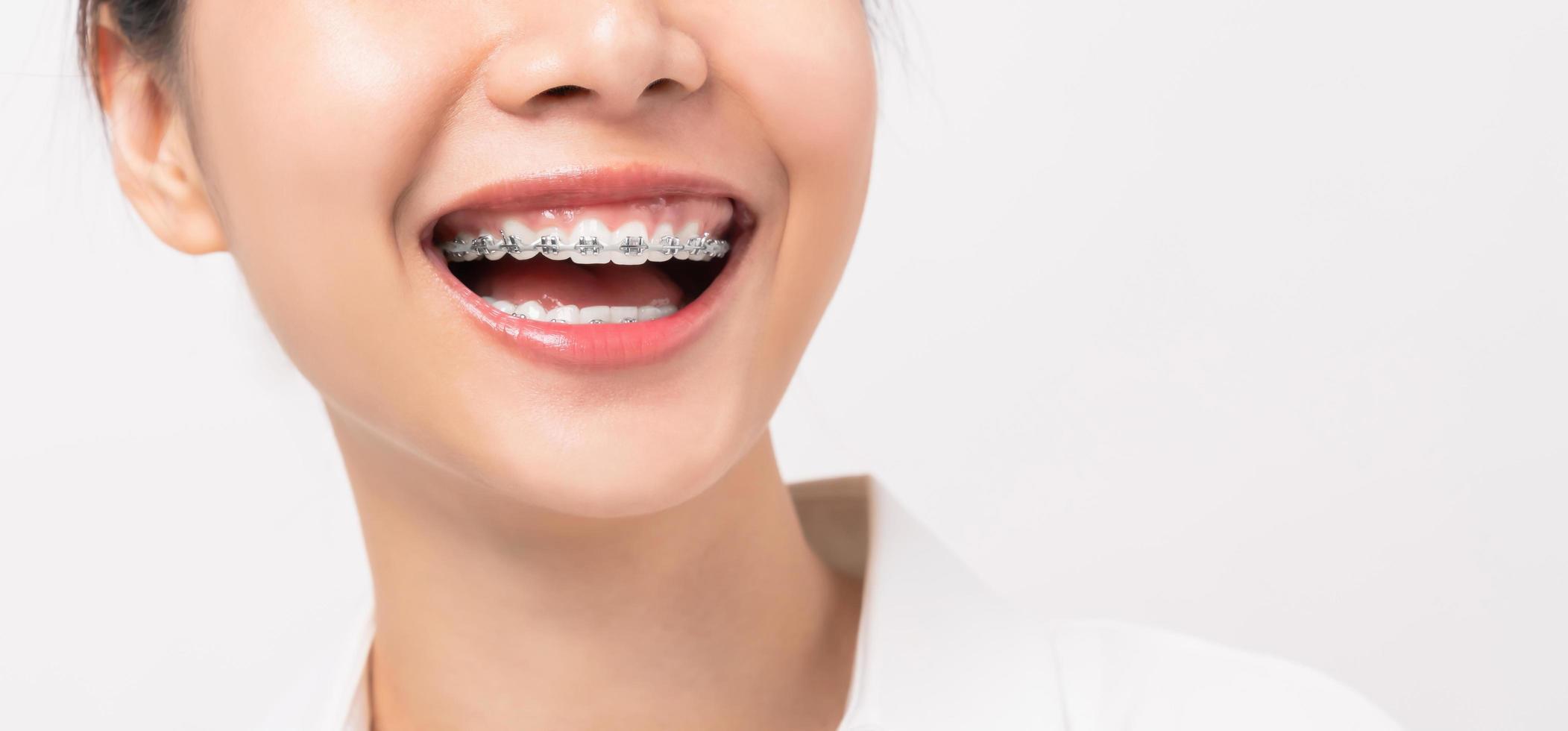 Nahaufnahme der Person, die Zahnspangen trägt foto