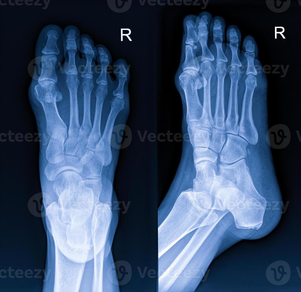 Röntgen des Fußes foto