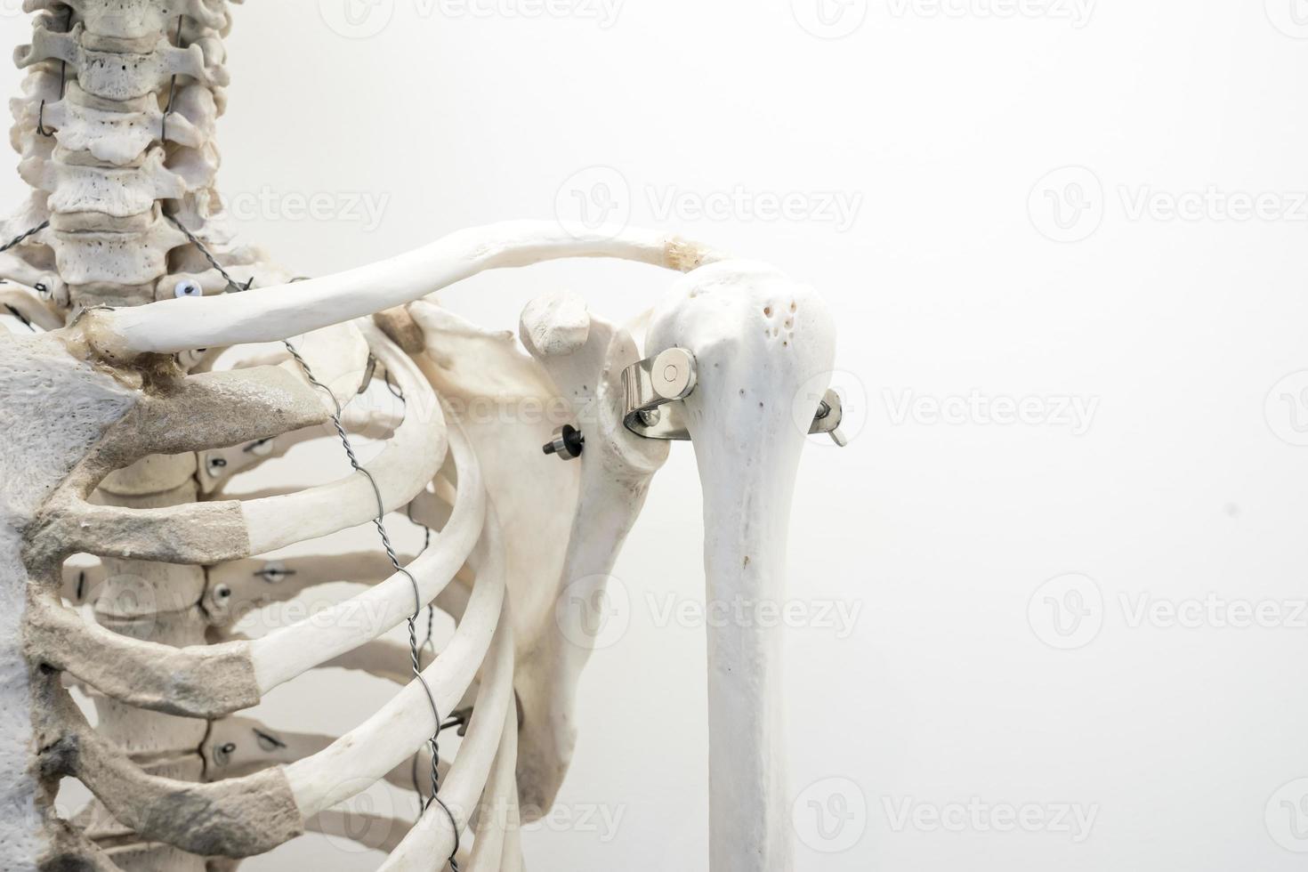 menschliche Knochenmarkstruktur, Schulterknochenschmerzen und Entzündungen foto