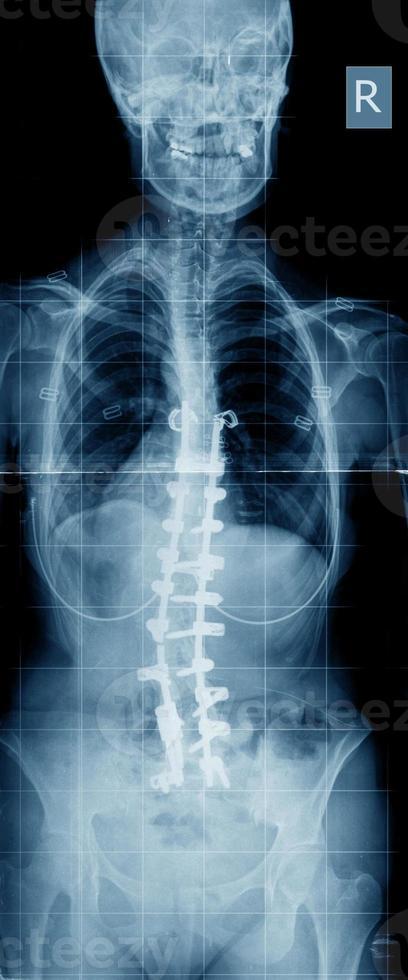 Skoliose-Röntgenbild mit Implantat foto