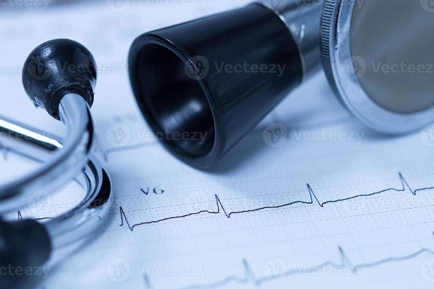 Stethoskop und Elektrokardiogramm foto