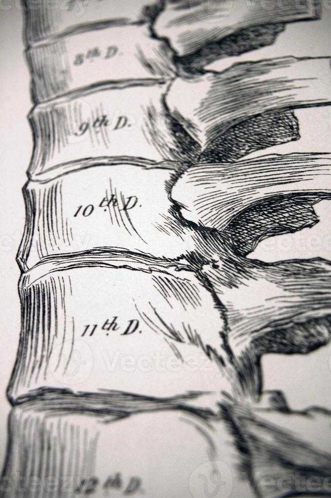 antike medizinische Illustration - Wirbel | Rücken foto
