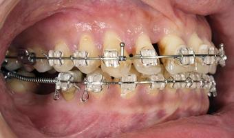 kieferorthopädische Behandlung mit Zahnfleischrezession foto