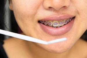 Mädchen lächelt mit Zahnspangen foto