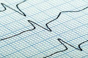 Kardiogramm des Herzschlags