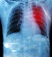Röntgenfilm von Brust und Bauch unter der Kuppel des Zwerchfells foto