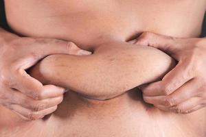 Nahaufnahme der Person, die überschüssiges Bauchfett hält foto