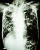 Film-Röntgen-Thorax zeigt Hohlraum in der rechten Lunge, Fibrose und interstitielles und fleckiges Infiltrat an beiden Lungen aufgrund einer Mycobacterium-Tuberkulose-Infektion Lungentuberkulose foto