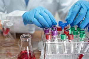 Wissenschaftler, der ein Röhrchen mit mikrobiologischem Probenausbruch Coronavirus oder Covid-19 infektiös im Labor für Ärzte in der Welt hält und analysiert. foto