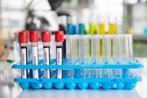Gefäßproben von Covid-19-Patienten in einem Krankenhauslabor foto