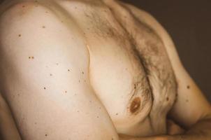Muttermale auf der Brust eines Mannes. foto