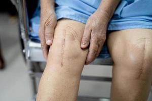 asiatische ältere Patientin zeigt ihre Narben chirurgischer Knie-Totalersatz foto