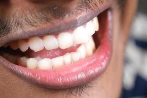 junger Mann offenes Reittier, das seine Zähne überprüft foto