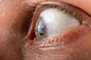 Auge mit Hornhautdystrophie Keratokonus-Krankheit Ausdünnung der Hornhaut foto