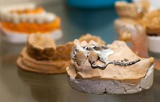 Zirkonium-Porzellan-Zahnplatte im Zahnarztgeschäft foto