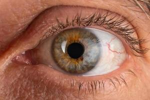ein älterer Mann Auge Nahaufnahme, Auge mit diagnostizierter Keratokonus-Hornhautverdünnung. foto