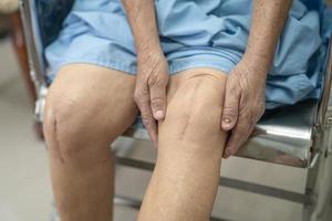 asiatische ältere Patientin zeigt ihre Narben chirurgisches Totalknie foto