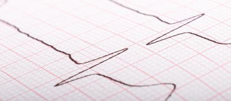 EKG-Kardiogramm der Herzimpulse aus nächster Nähe, Hypertoniebehandlung foto